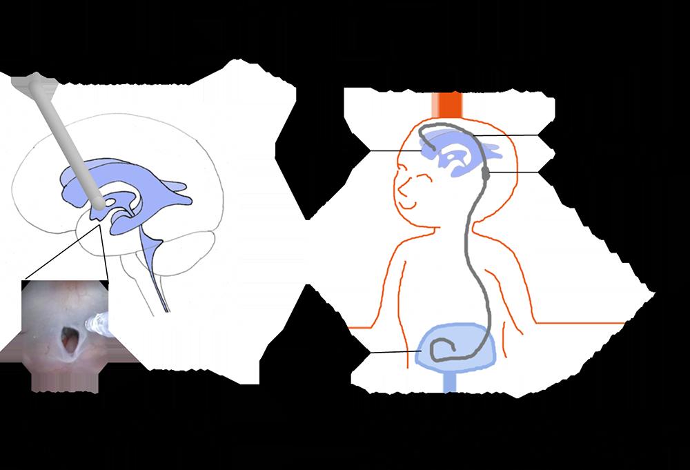 小児脳神経外科 図1
