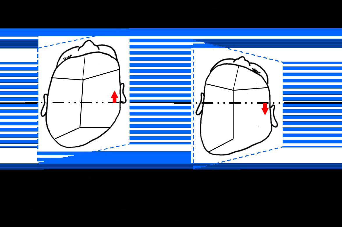 【小児脳神経外科】図5 向きぐせと後頭部早期癒合症の違い
