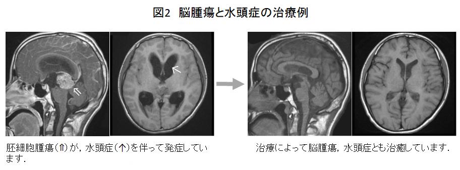 脳腫瘍と水頭症の治療例