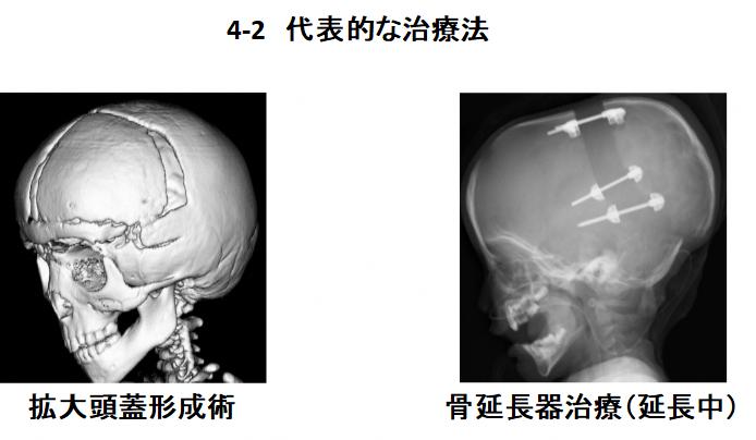 小児脳神経外科図4-2