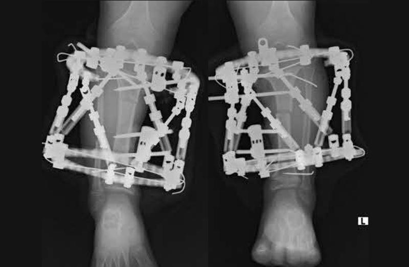 骨系統疾患 軟骨無形成症 Talor Spatial Frame