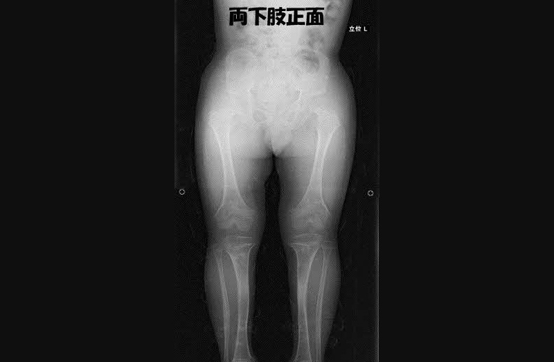 骨系統疾患 軟骨無形成症 術後